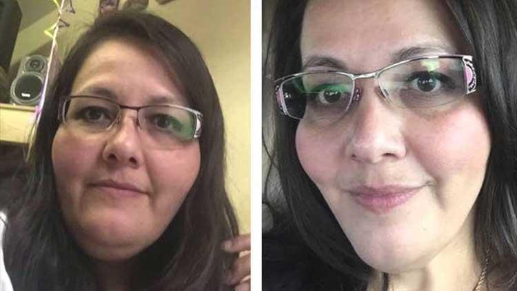 emfizem sever de pierdere în greutate pierde informațiile despre grăsimi